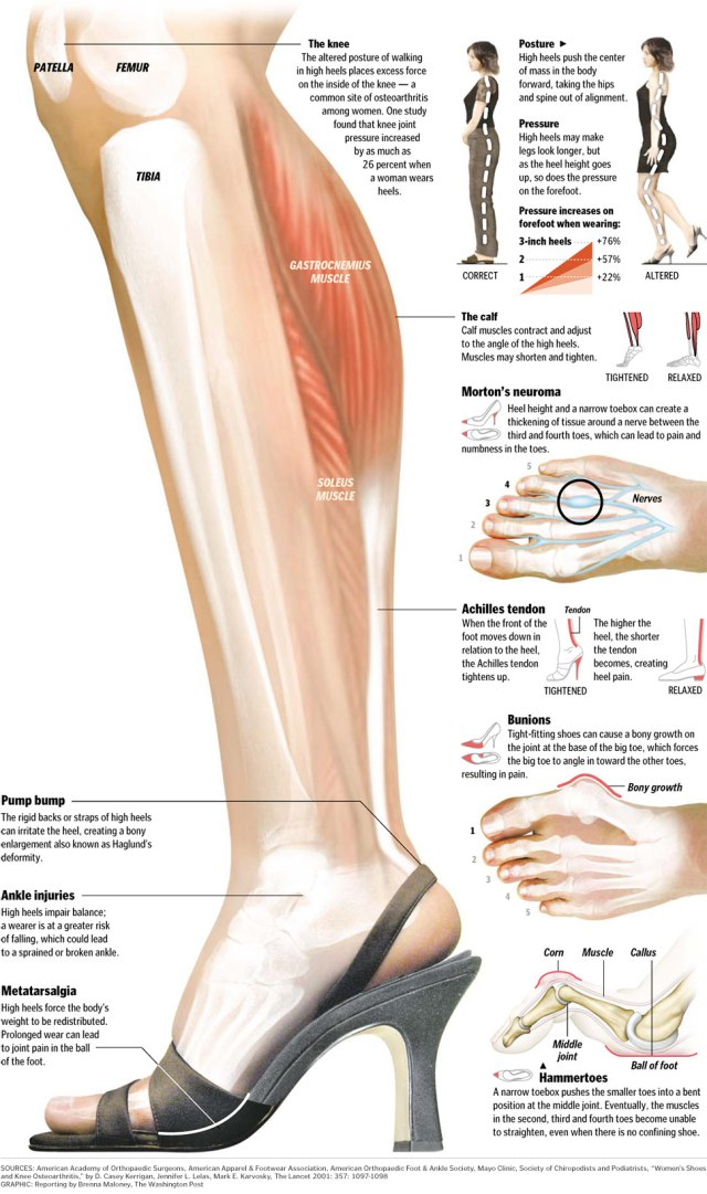 Damage Caused by High Heels