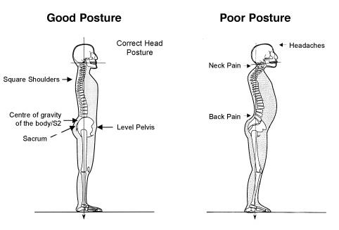 poor good posture