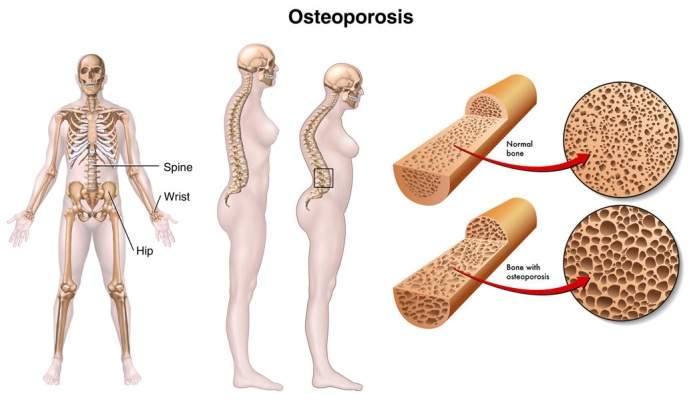 early signs of osteoporosis in women, Skeleton