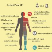 wbv cerebral palsy