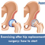 hip replacement surgery exercise