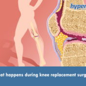 What happens during knee replacement surgery