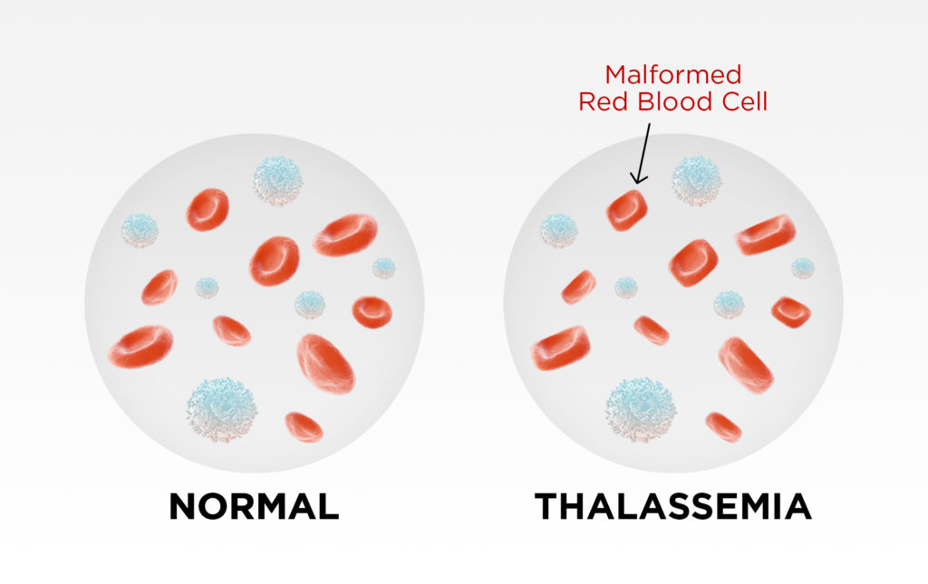 Thalassaemia & Whole Body Vibration - The State of the Research 5
