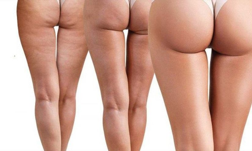 how to manage cellulite